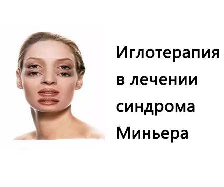 Синдром Миньера